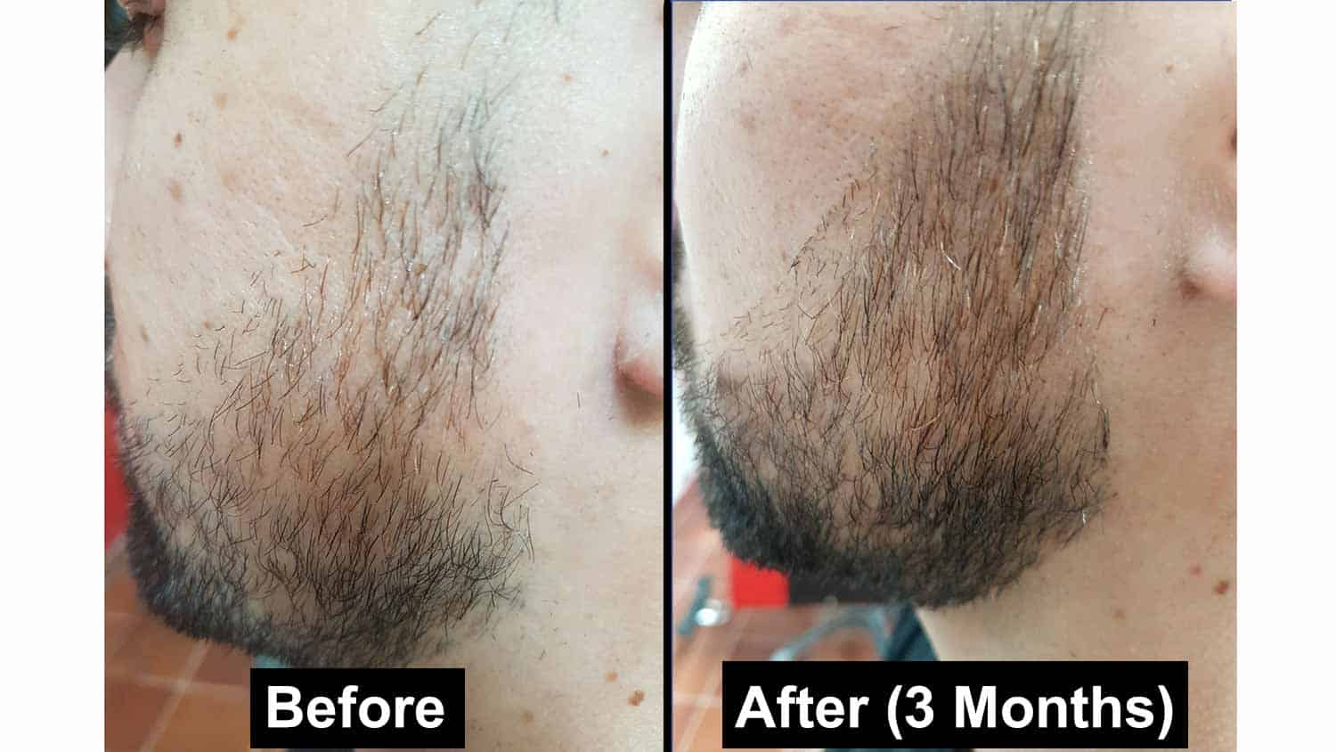 Before and after Minoxidil Beard Treatment